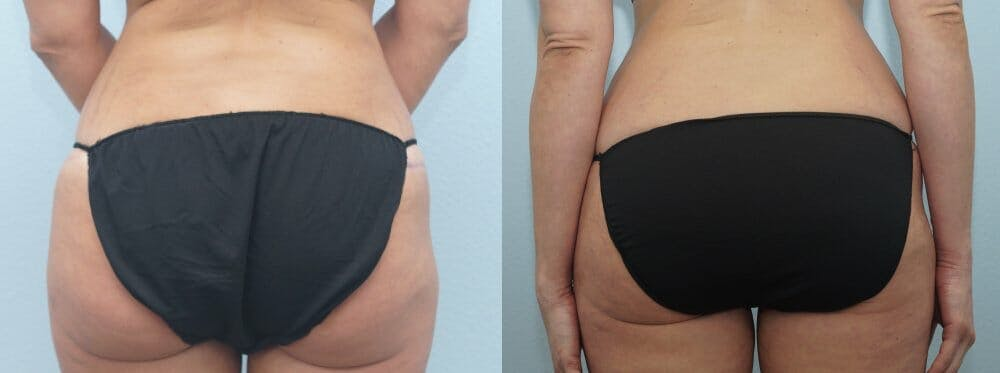 Tummy Tuck Gallery - Patient 47254372 - Image 2