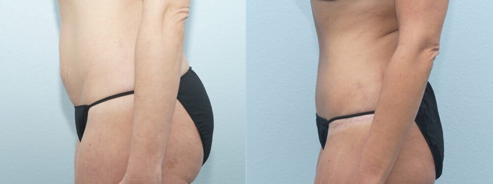Tummy Tuck Gallery - Patient 47254372 - Image 4