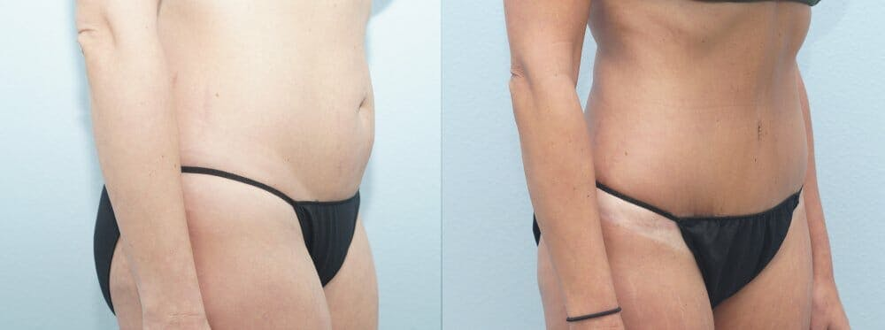 Tummy Tuck Gallery - Patient 47254372 - Image 5