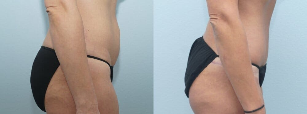 Tummy Tuck Gallery - Patient 47254372 - Image 6