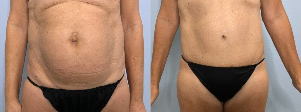 Tummy Tuck Gallery - Patient 47254507 - Image 1