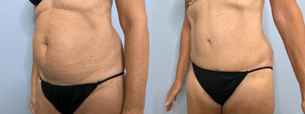 Tummy Tuck Gallery - Patient 47254507 - Image 2