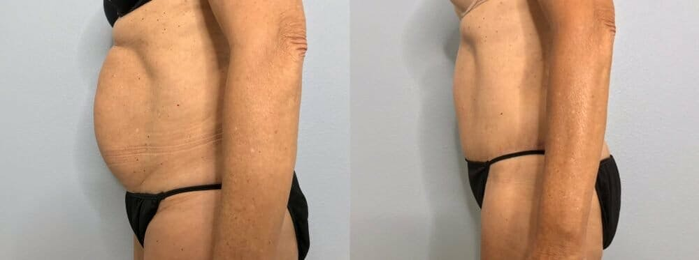 Tummy Tuck Gallery - Patient 47254507 - Image 3