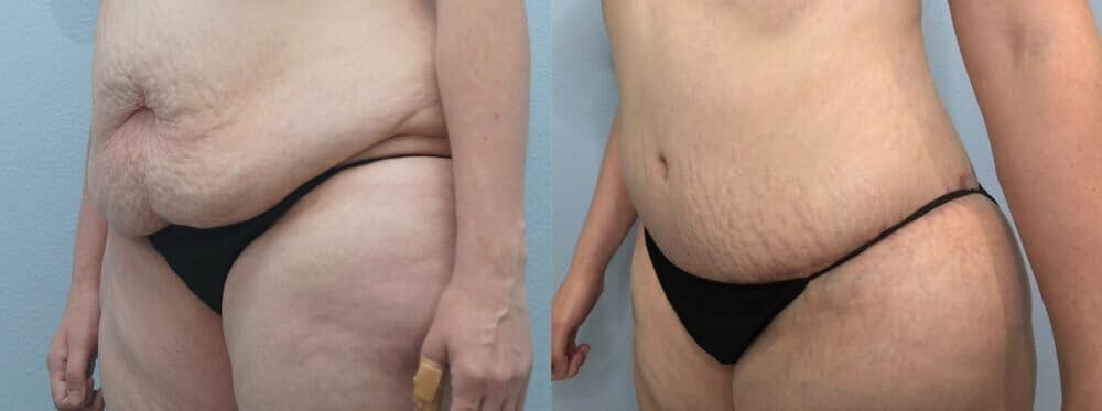 Tummy Tuck Gallery - Patient 47254516 - Image 3