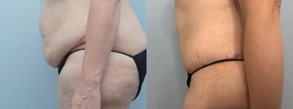 Tummy Tuck Gallery - Patient 47254516 - Image 4