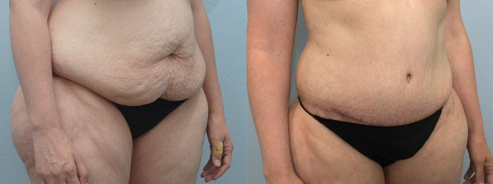 Tummy Tuck Gallery - Patient 47254516 - Image 5