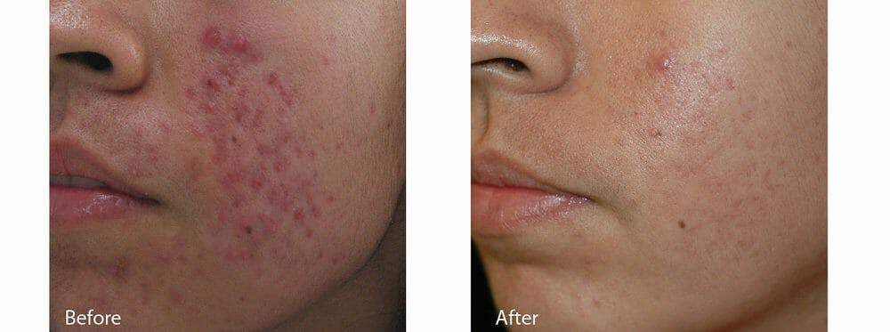 Acne Gallery - Patient 53590653 - Image 1