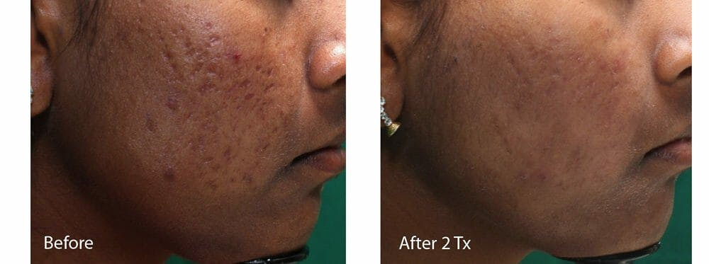 Acne Gallery - Patient 53590654 - Image 1