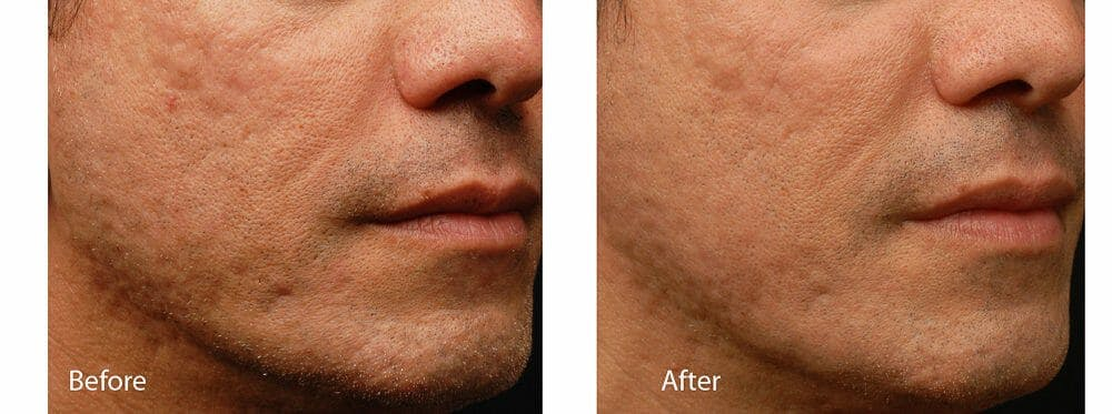 Acne Gallery - Patient 53590655 - Image 1