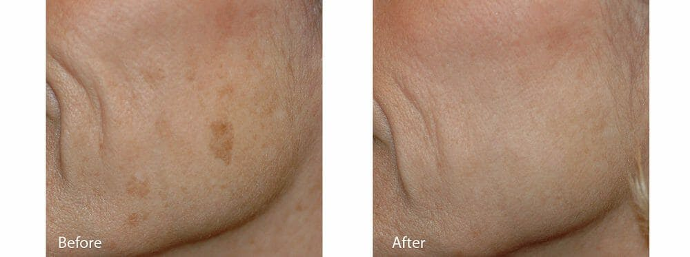 Age Spots and Melasma Gallery - Patient 47432433 - Image 1