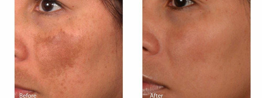 Age Spots and Melasma Gallery - Patient 47432434 - Image 1