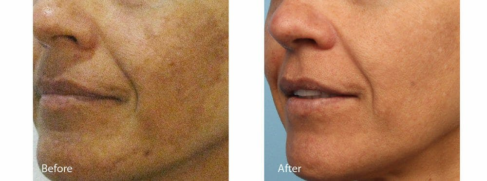 Age Spots and Melasma Gallery - Patient 47432437 - Image 1