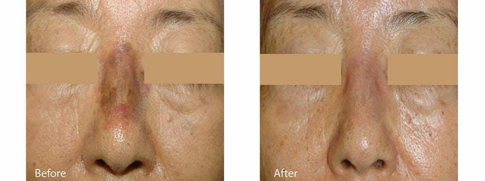 Age Spots and Melasma Gallery - Patient 47432439 - Image 1