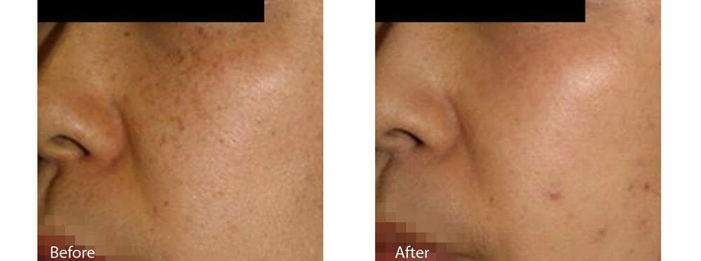 Age Spots and Melasma Gallery - Patient 47432443 - Image 1