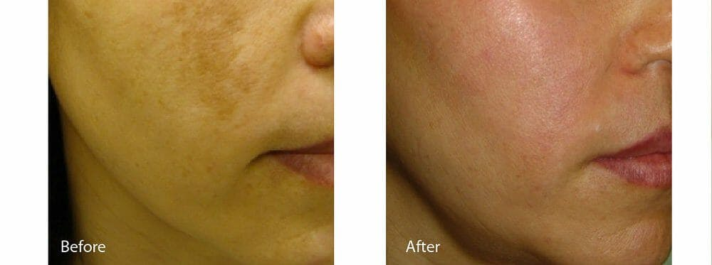 Age Spots and Melasma Gallery - Patient 47432454 - Image 1