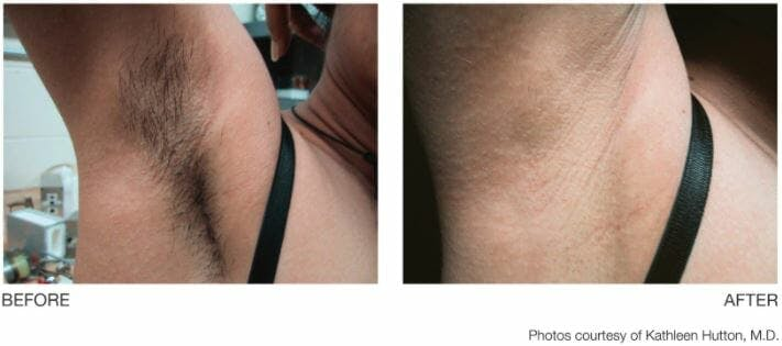 Laser Hair Removal Gallery - Patient 47432597 - Image 1