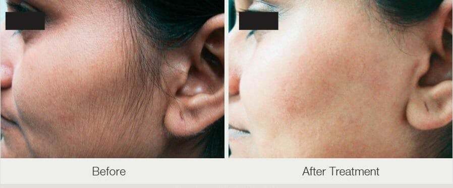 Laser Hair Removal Gallery - Patient 47432599 - Image 1