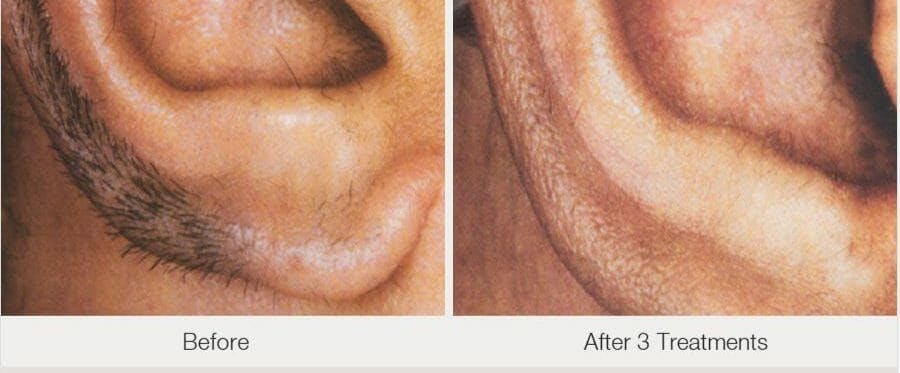 Laser Hair Removal Gallery - Patient 53599707 - Image 1