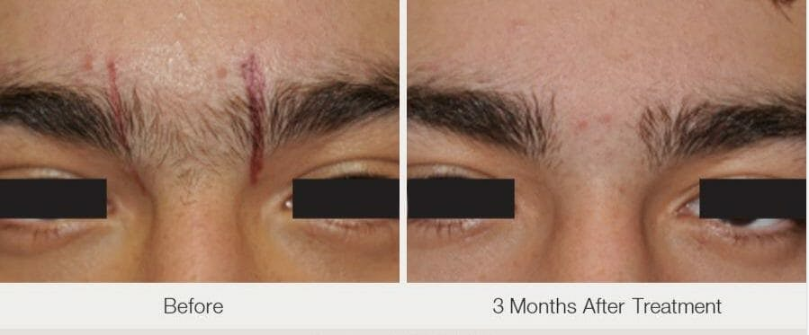 Laser Hair Removal Gallery - Patient 53599708 - Image 1