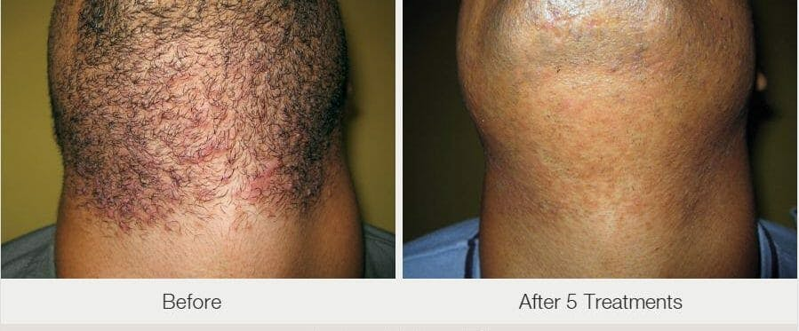 Laser Hair Removal Gallery - Patient 53599709 - Image 1