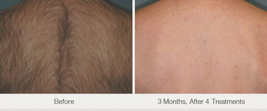 Laser Hair Removal Gallery - Patient 53599710 - Image 1