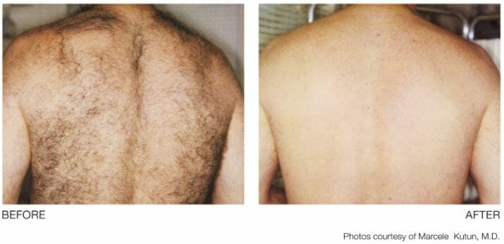 Laser Hair Removal Gallery - Patient 53599712 - Image 1