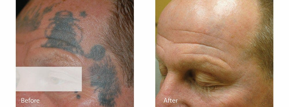 Tattoo Removal Gallery - Patient 47432659 - Image 1