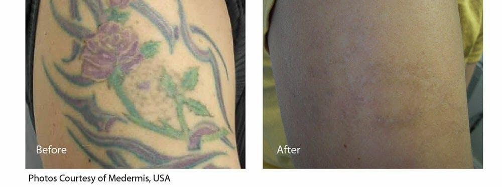 Tattoo Removal Gallery - Patient 47432662 - Image 1