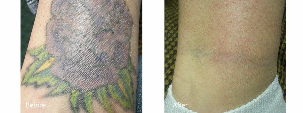 Tattoo Removal Gallery - Patient 47432665 - Image 1