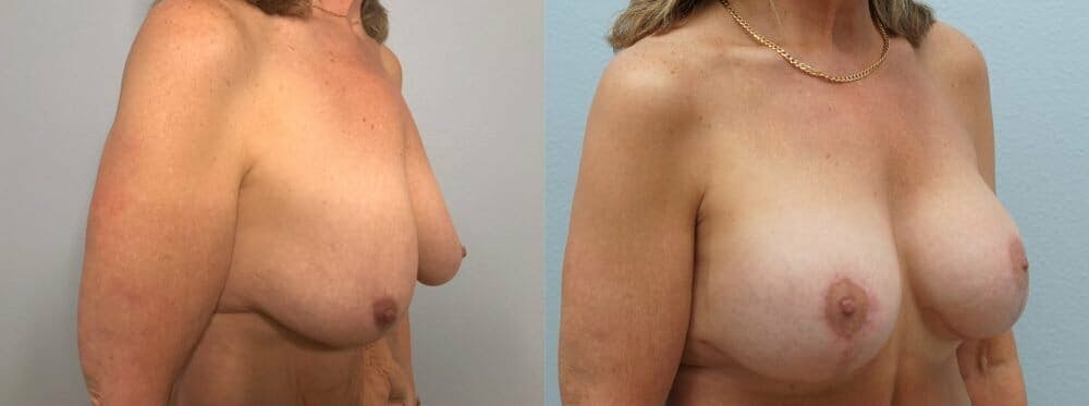 Breast Lift With Implants Gallery - Patient 47434203 - Image 2