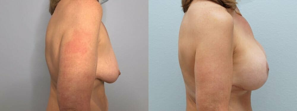 Breast Lift With Implants Gallery - Patient 47434203 - Image 3