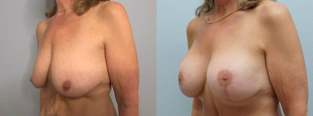 Breast Lift With Implants Gallery - Patient 47434203 - Image 4