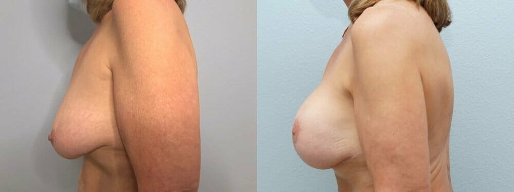 Breast Lift With Implants Gallery - Patient 47434203 - Image 5