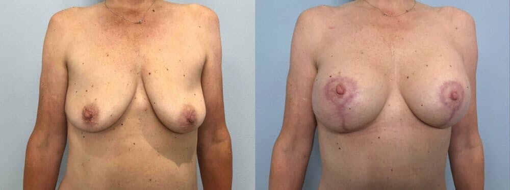 Breast Lift With Implants Gallery - Patient 47434208 - Image 1
