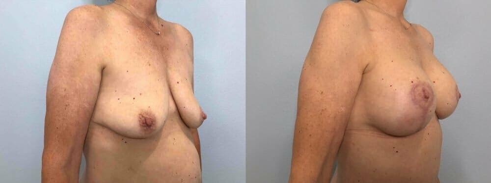 Breast Lift With Implants Gallery - Patient 47434208 - Image 2