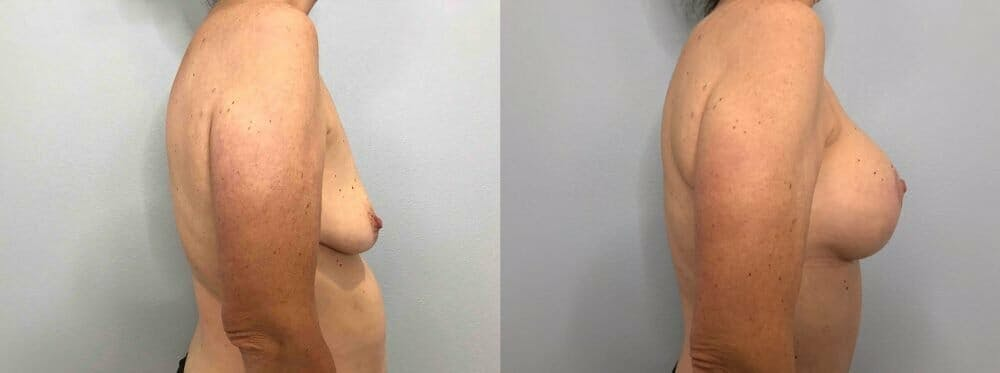 Breast Lift With Implants Gallery - Patient 47434208 - Image 3