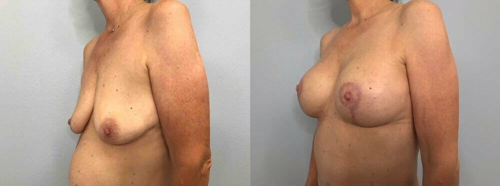 Breast Lift With Implants Gallery - Patient 47434208 - Image 4