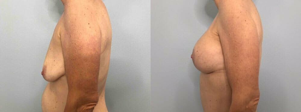 Breast Lift With Implants Gallery - Patient 47434208 - Image 5