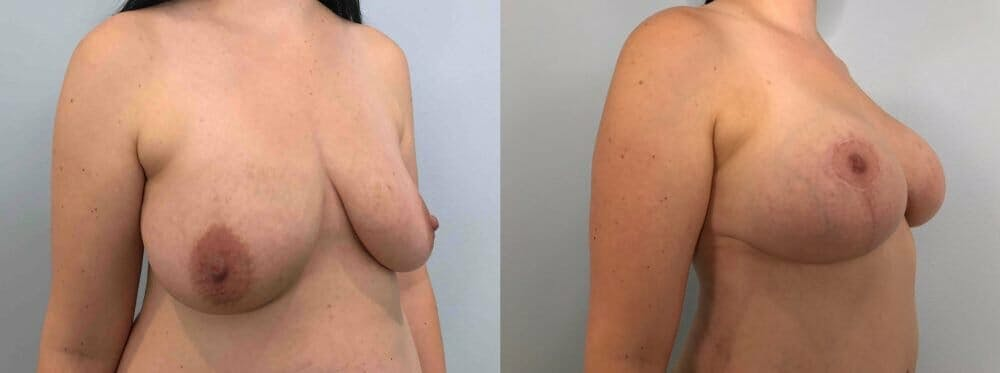Breast Lift With Implants Gallery - Patient 47434211 - Image 2