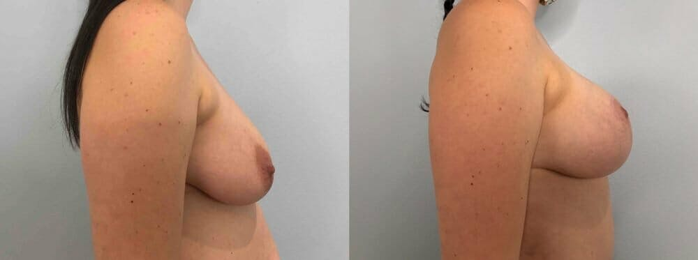 Breast Lift With Implants Gallery - Patient 47434211 - Image 3
