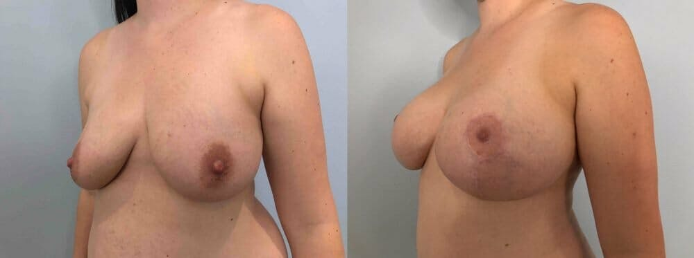 Breast Lift With Implants Gallery - Patient 47434211 - Image 4