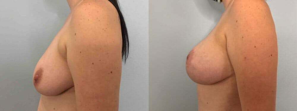 Breast Lift With Implants Gallery - Patient 47434211 - Image 5