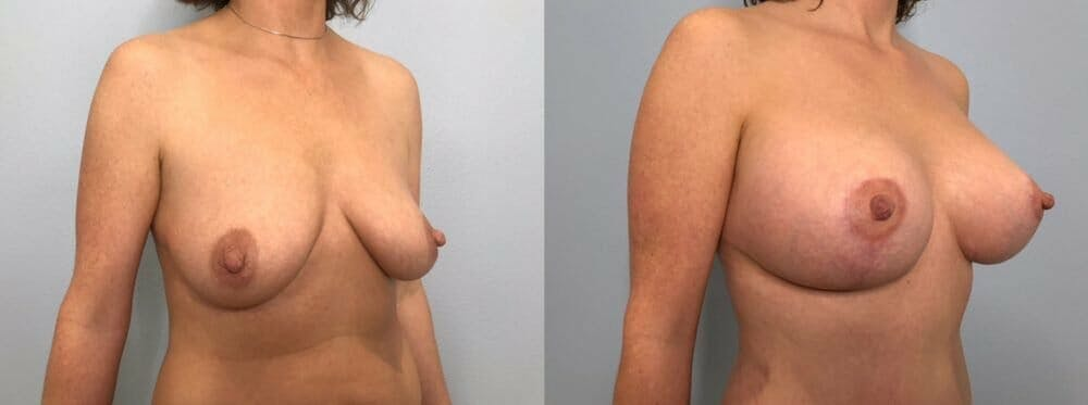 Breast Lift With Implants Gallery - Patient 47434213 - Image 2