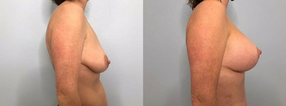Breast Lift With Implants Gallery - Patient 47434213 - Image 3