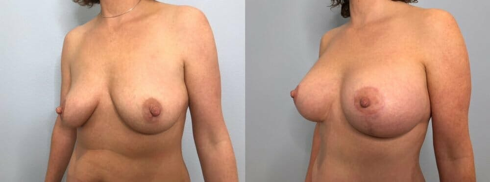 Breast Lift With Implants Gallery - Patient 47434213 - Image 4