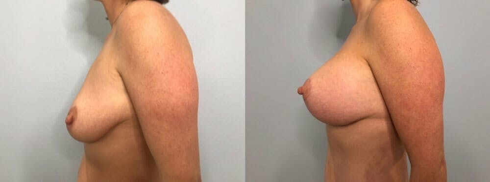 Breast Lift With Implants Gallery - Patient 47434213 - Image 5