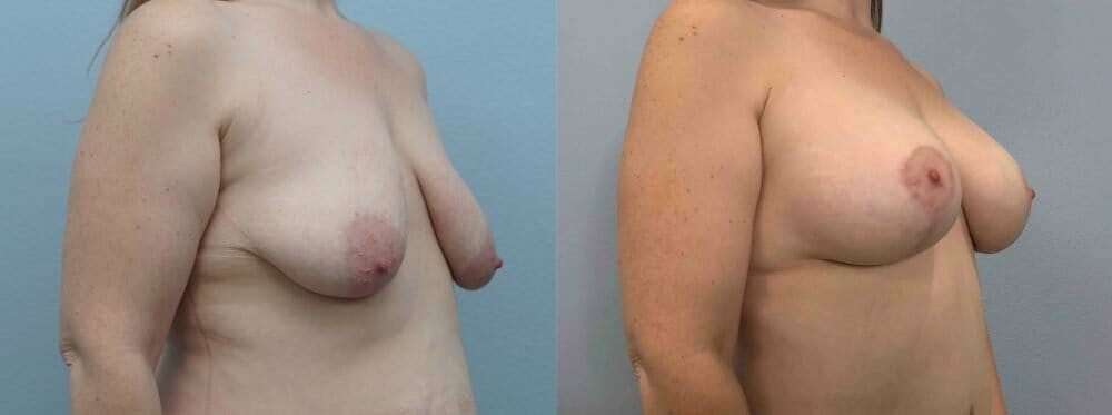 Breast Lift With Implants Gallery - Patient 47434216 - Image 2