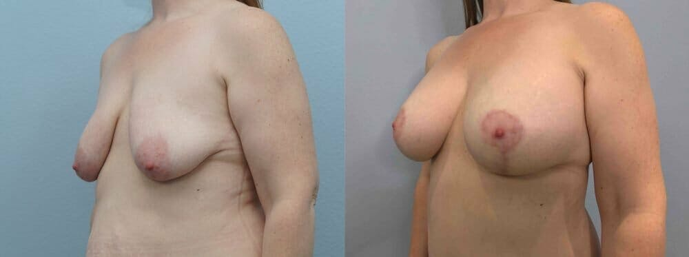 Breast Lift With Implants Gallery - Patient 47434216 - Image 4