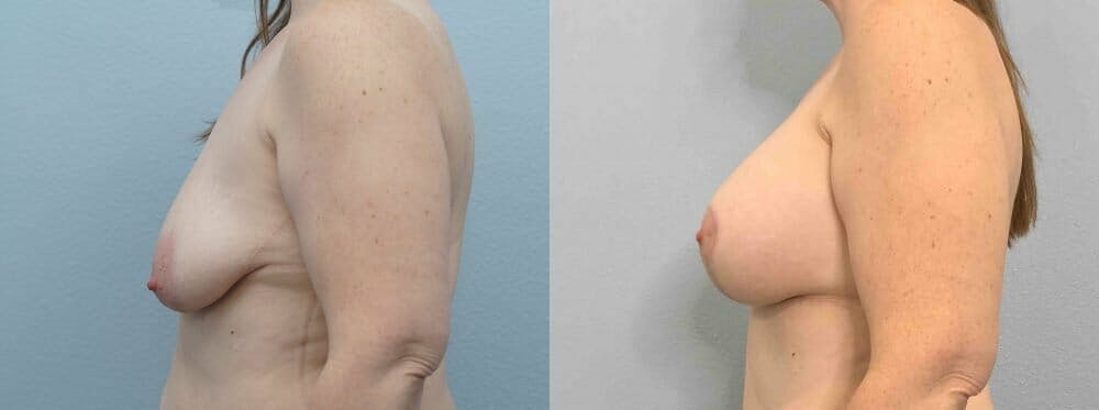 Breast Lift With Implants Gallery - Patient 47434216 - Image 5