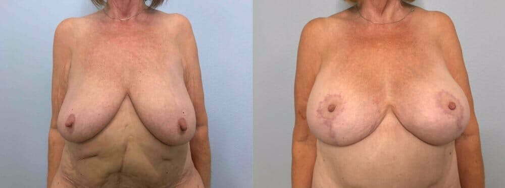 Breast Lift With Implants Gallery - Patient 47434217 - Image 1